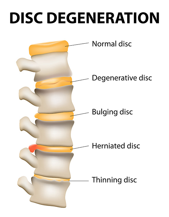 Disc Displacement & Radiculopathy