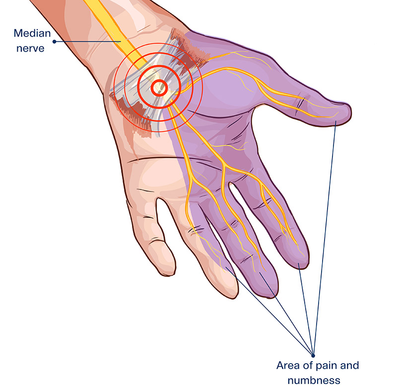 Carpal Tunnel Treatment - Summa Pain Care
