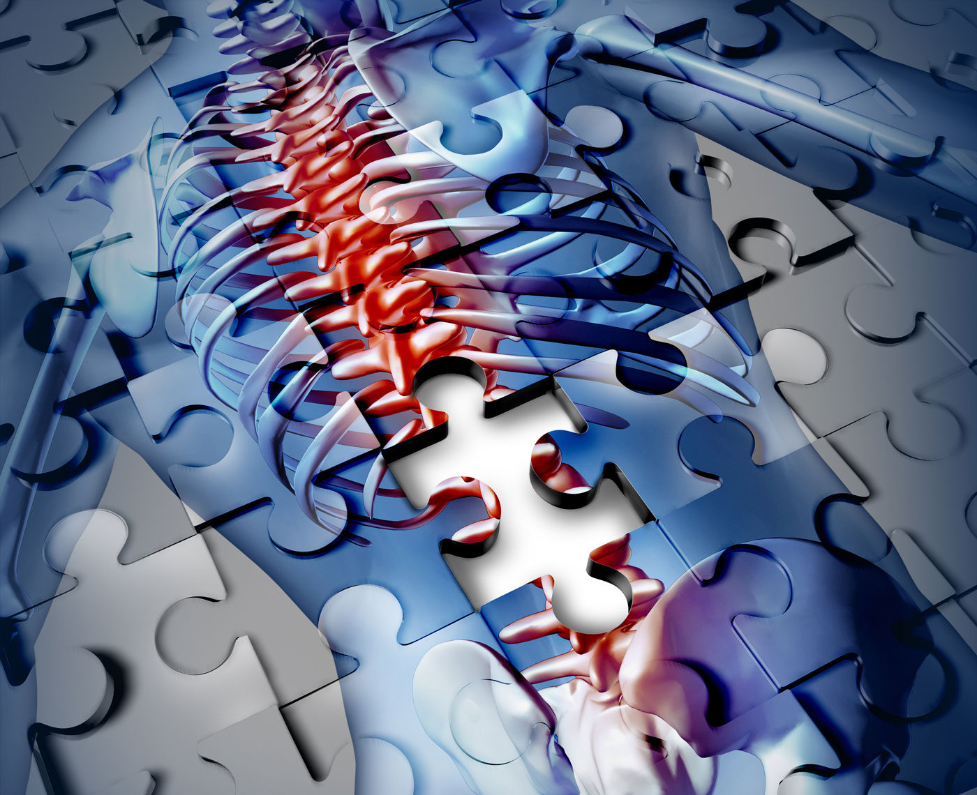 Thoracic Spine Pain Treatment